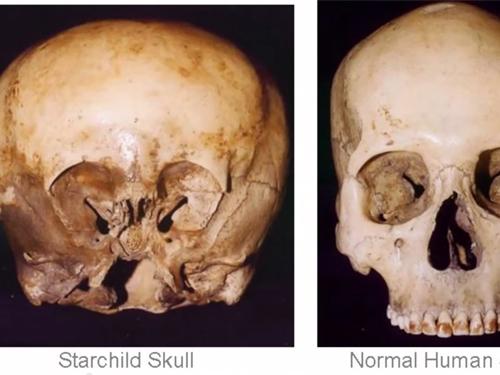 宇宙人と人間の混血種!? メキシコで発見された謎の頭蓋骨