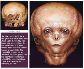 宇宙人と人間の混血種スター・チャイルド。メキシコで発見された謎の頭蓋骨