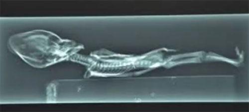 アタカマ超小人のエックス線写真