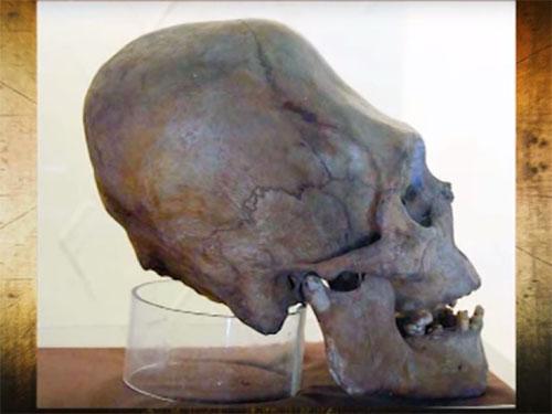 ペルーで発見された奇怪な長頭頭蓋骨1