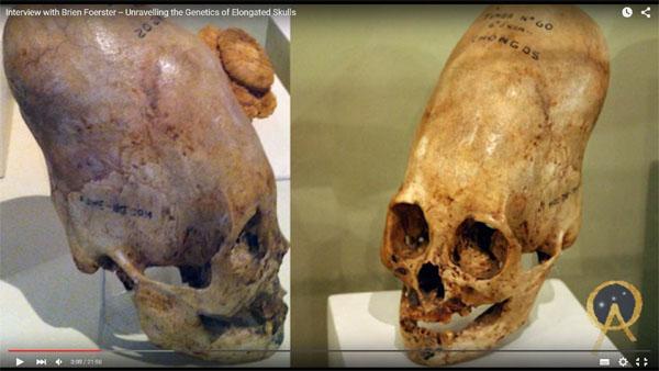 パラカス長頭頭蓋骨、DNA鑑定! 本物のエイリアン頭蓋骨か?