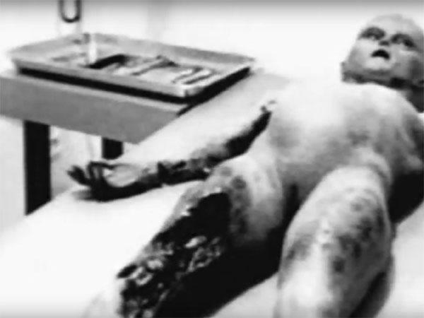 ロズウェル事件・宇宙人解剖フィルム1