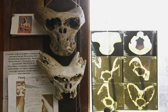 ロシア・コーカサス山脈の山中で発見された2つのエイリアンの頭蓋骨