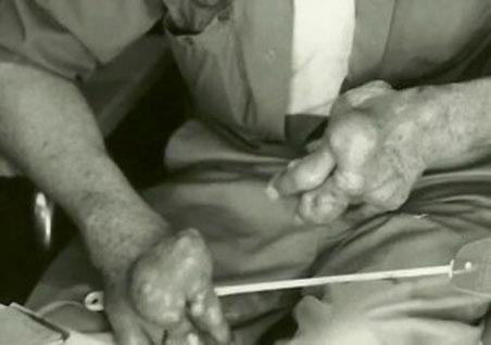 UFOの破片で健康被害に遭ったブローリー・オーツ氏2